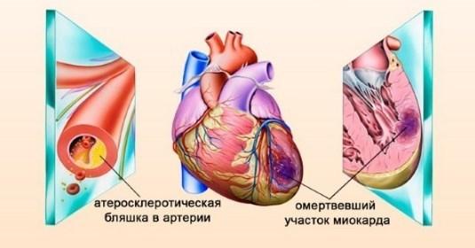 Почему снижение артериального давления опасно