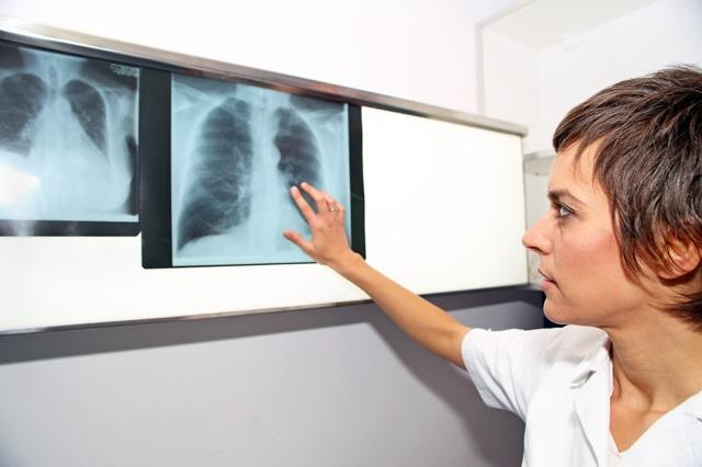 Сердечный кашель: происхождение и симптомы, методы лечения заболевания