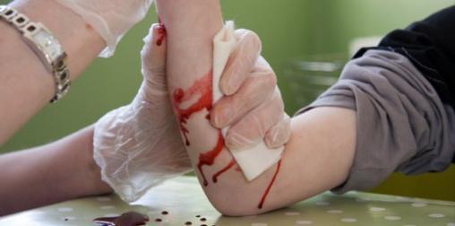 Венозное кровотечение: признаки, первая помощь, наложения жгута, лечение