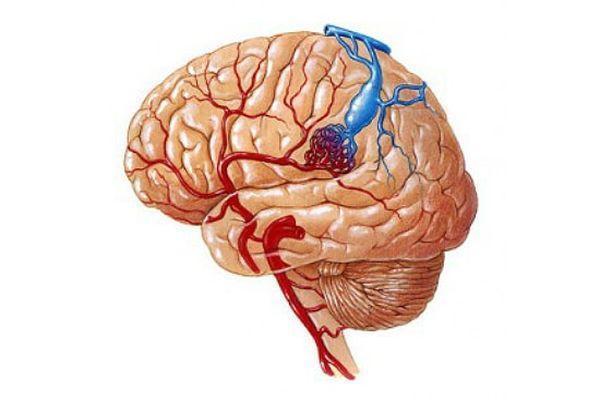Мальформация сосудов головного мозга: причины, симптомы, диагностика, лечение и прогноз