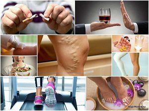 Тромбофлебит: причины возникновения, симптомы и способы лечения патологии вен нижних конечностей