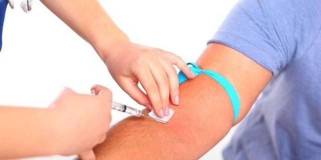 Анализ на иммунный статус: что это такое, как сдать кровь на исследование, показания и особенности проведения, расшифровка