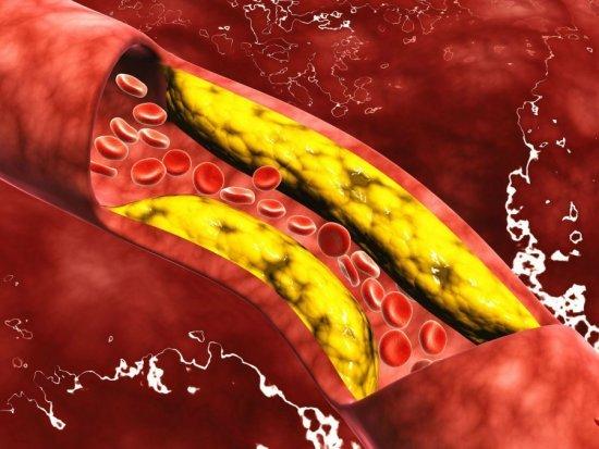 Какие продукты понижают холестерин в крови быстро и эффективно без лекарств