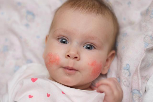 Повышенный гемоглобин у ребенка: причины, признаки, чем опасно, что делать