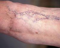 Варикозное расширение вен: механизм развития и симптомы, лечение, возможные осложнения