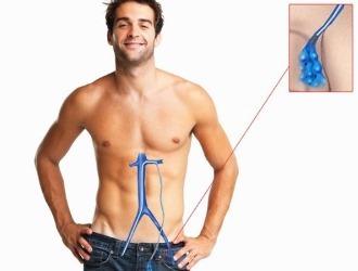 Варикоцеле: причины, признаки, постановка диагноза и методы лечения болезни у мужчин