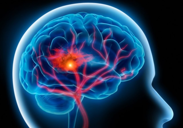 Вытяжка из гинкго билоба: улучшение кровообращения головного мозга и ног