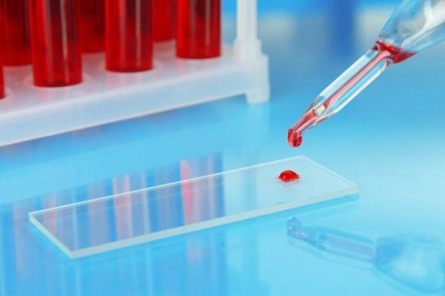 Высокий и низкий соэ и гемоглобин: причины, что делать