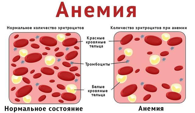 Может ли гематоген повысить гемоглобин в крови или нет: польза и вред