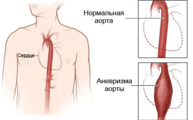 Почему колит в груди: патологии сердца и других заболевания