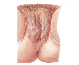 Варикоз половых губ: причина патологии, разновидности и формы отклонения, диагностические и лечение