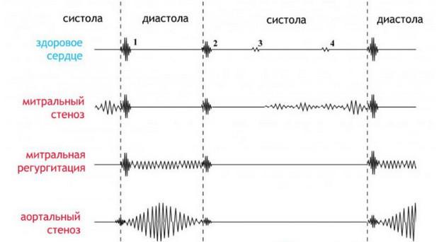 Аускультация сердца: точки для выслушивания, правила проведения обследования