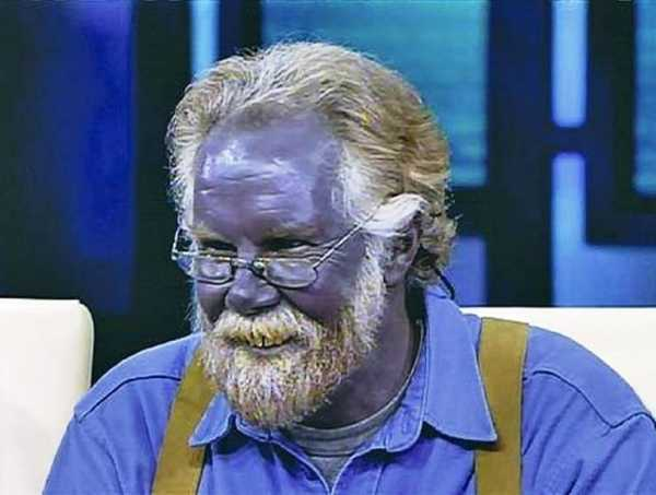 Голубая кровь у человека: причины появления, как выглядит синяя жидкость, необходимо ли лечение