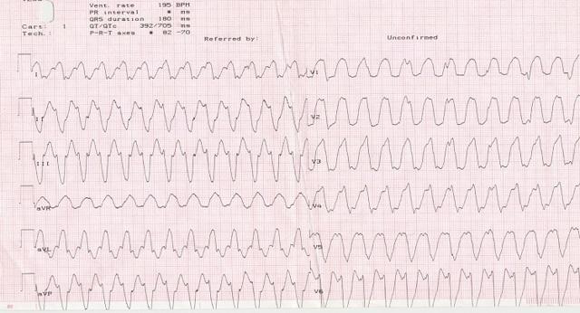 Желудочковая тахикардия: причины, виды, симптомы и проявления на ЭКГ, лечение
