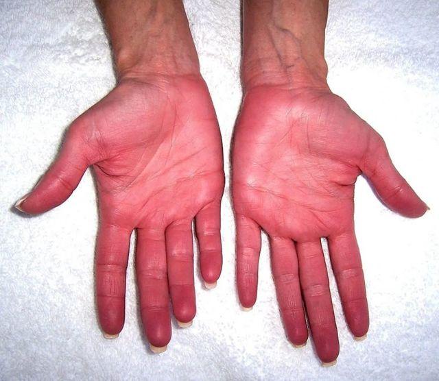 Болезнь Вакеза: симптомы, причины, диагностика, особенности лечения