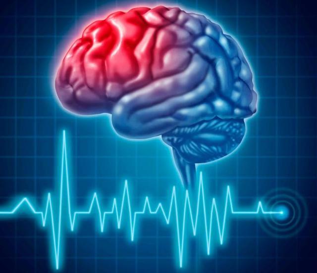 Признаки инсульта: причины появления симптомов и клиническая картина, лечение патологии головного мозга