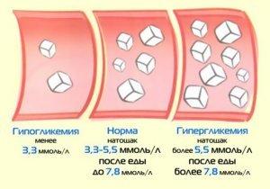Гиперкалиемия: причины и симптомы, лечение патологии у людей с сахарным диабетом