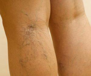 Болят вены на ногах: что делать, чем лечить народными средствами