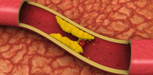 Густая кровь: нормы вязкости и симптомы сгущения, возможные последствия для организма и лечение
