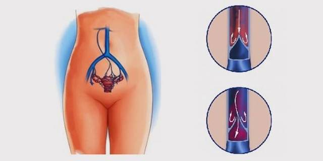 Варикозное расширение вен малого таза у женщин: симптомы и лечение, профилактика