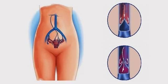 Варикоз яичника у женщин лечение — Лечим варикоз