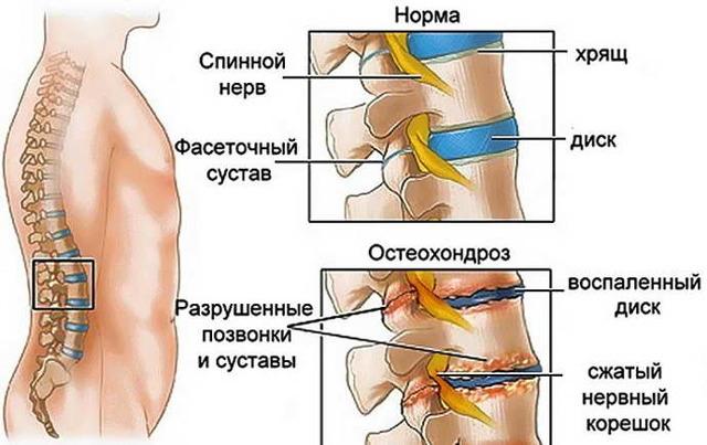 Очаговые изменения вещества мозга дисциркуляторного характера: что это такое, причины, симптомы, лечение