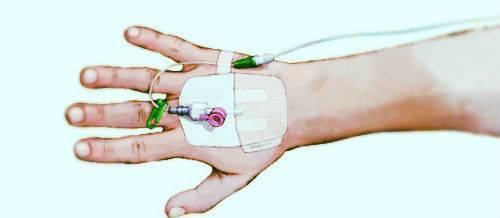 Синяк после взятия крови из вены: что делать