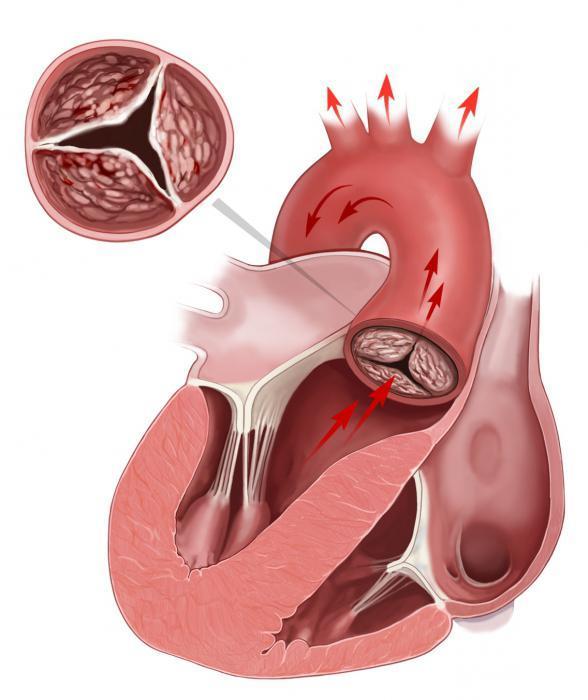 Митральный стеноз: основные причины, признаки и симптомы заболевания, методы диагностики и лечения