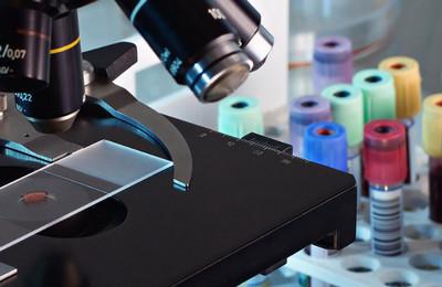 Сдвиг лейкоцитарной формулы влево: что это такое, причины, расшифровка, как лечить