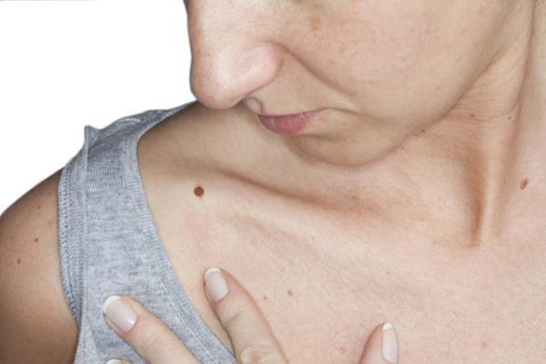 Геморрагическая сыпь: причины и лечение, симптомы (фото)