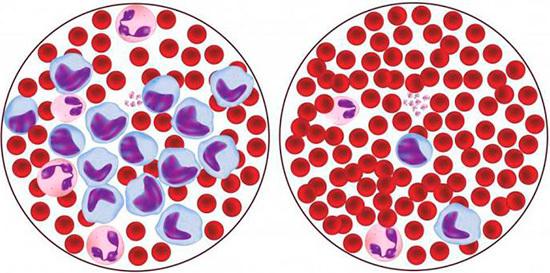 Моноциты: норма у женщин по возрасту, таблица в крови